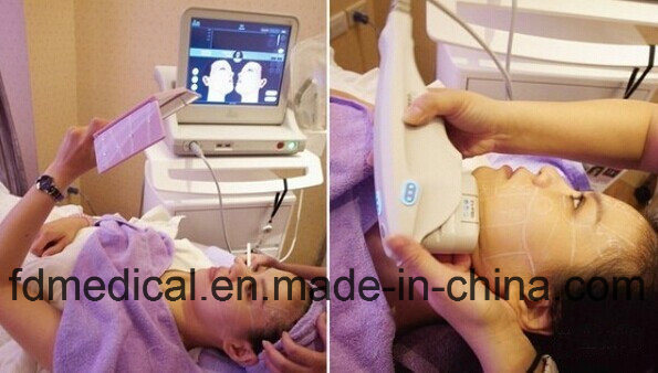 Easy Facial Skin Younth Crow′s Feet Removal Hifu Beauty Machine