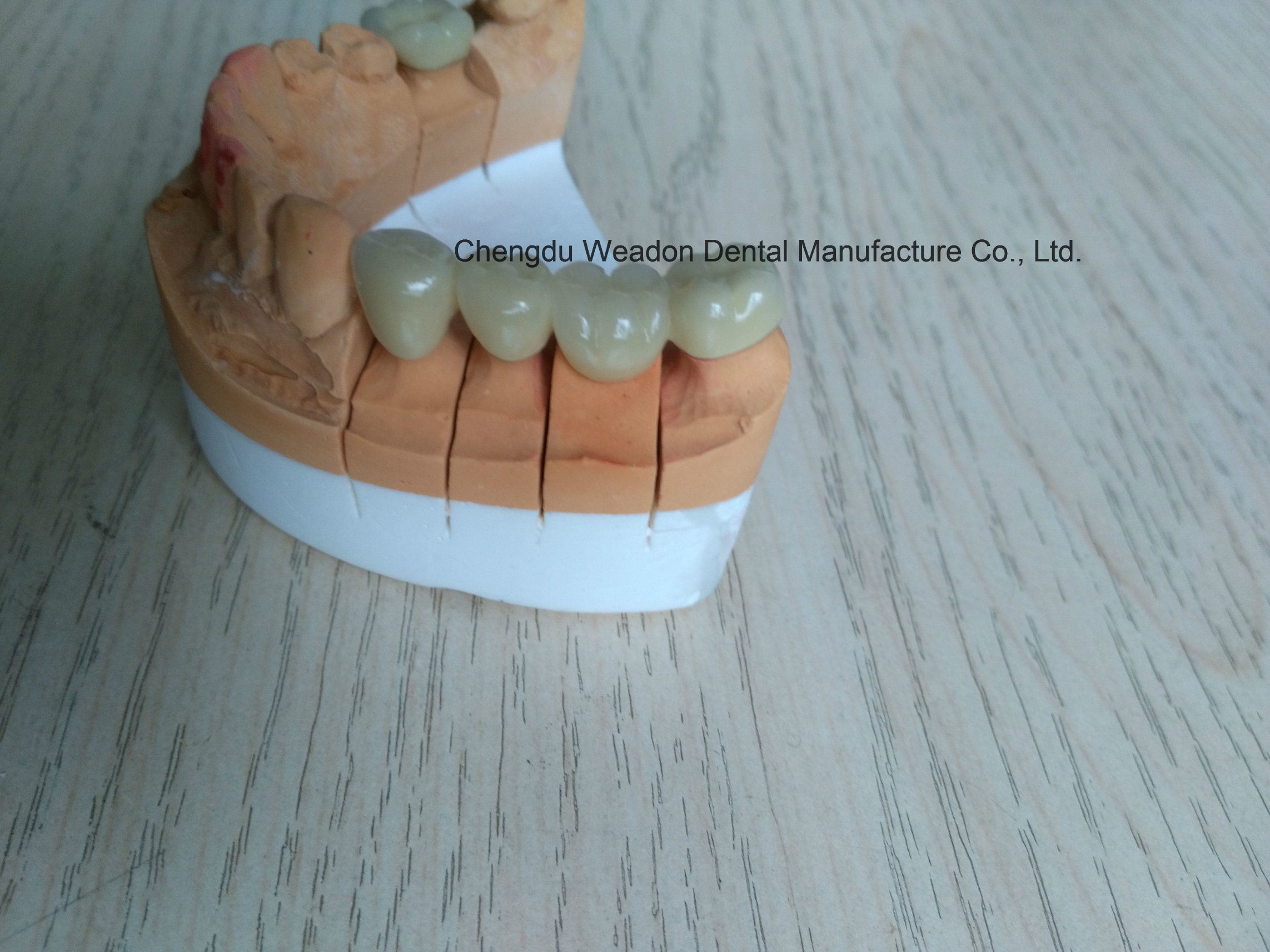 Porcelain-Metal Bridge Denture for Clinic From Chinese Lab Center