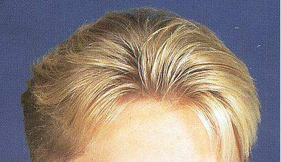 Hand Tied Natural Hairline Men′s Hair Replacement Toupees