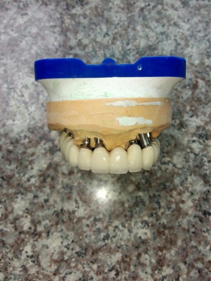 Dental Implant Metal Ceramic Bridge From China Dental Lab