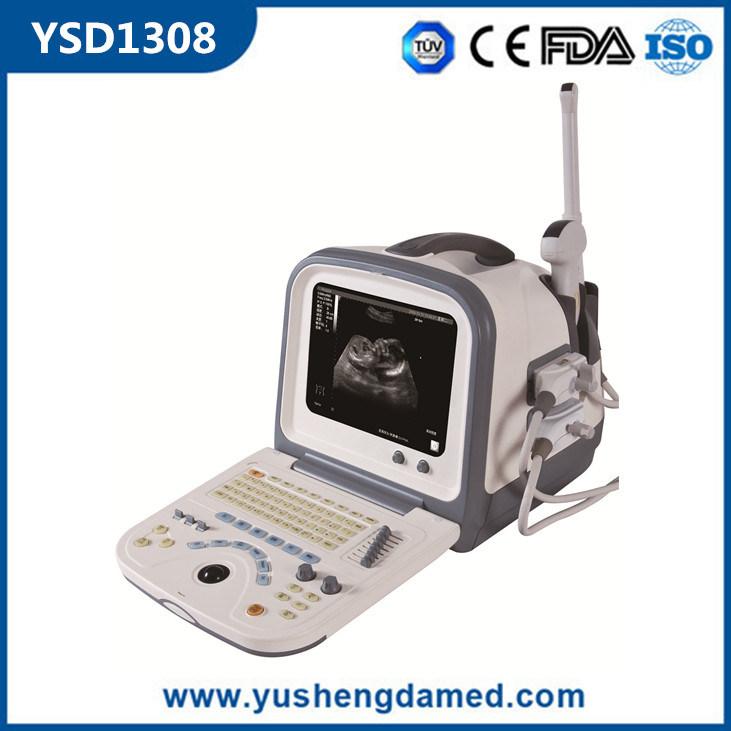 Ysd1308 Hot Sale PC Based Digital Portable 3D Ultrasound