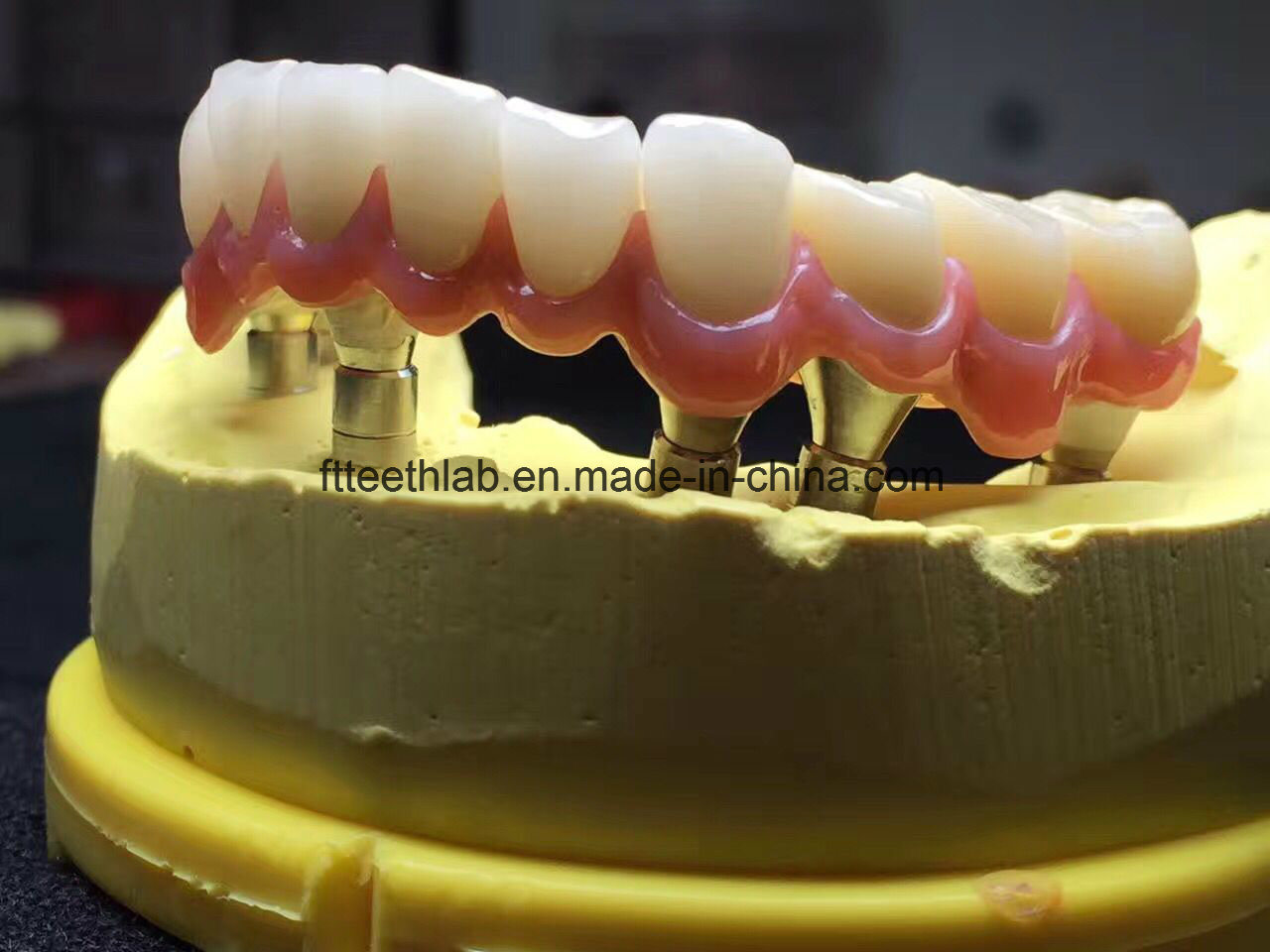 Full Arch Zirconium Implant Bridge From China Dental Lab