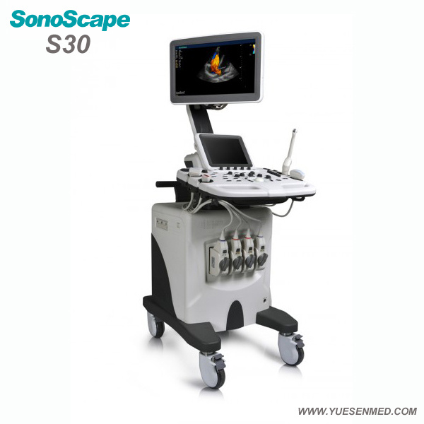 Hospital Medical Sosonoscape S30 3/4D Color Doppler Trolley Mobile Ultrasound Machine
