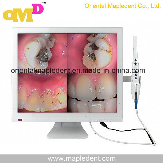 CE Approved Dental Intraoral Camera with 19 Inch LED Monitor