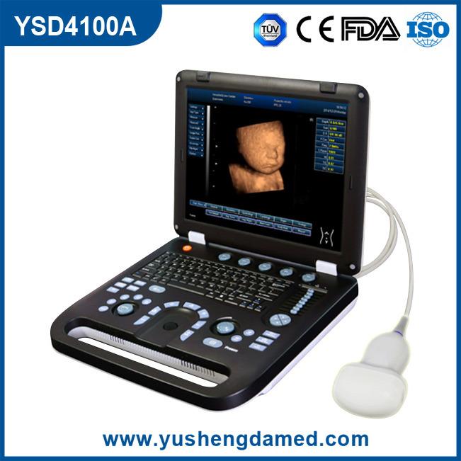 Ce Hospital Equipment Medical Diagnostic Ultrasounic Machine Digital Laptop Ultrasound