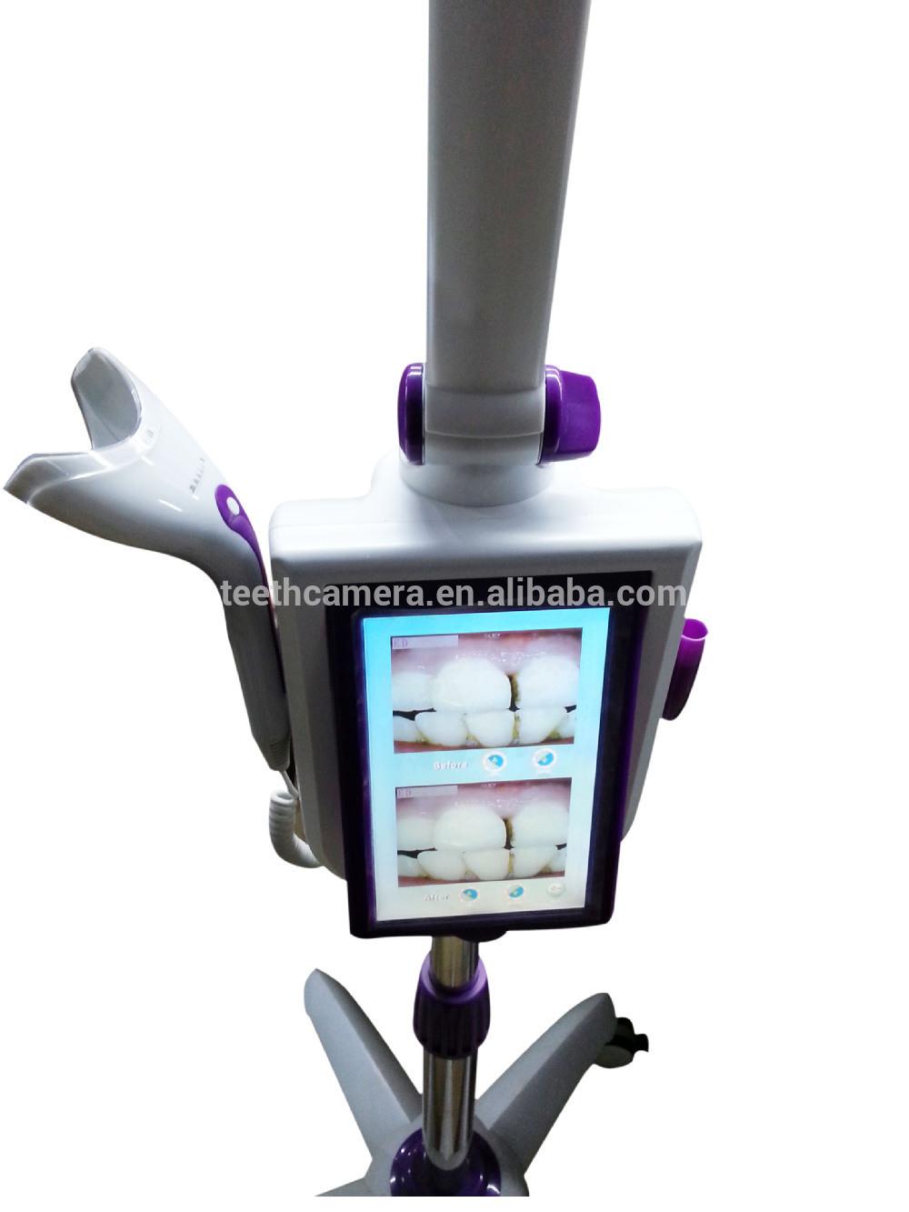 Md887b Colorful Teeth Bleaching System with Digital Camera