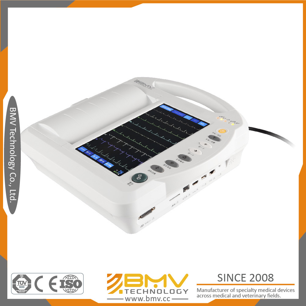 Bes-1210at 10 Inch Touchscreen Electrocardiograph Medical Device