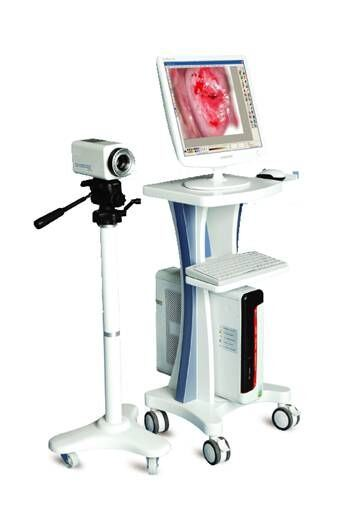 Digital Electronic Video Colposcope