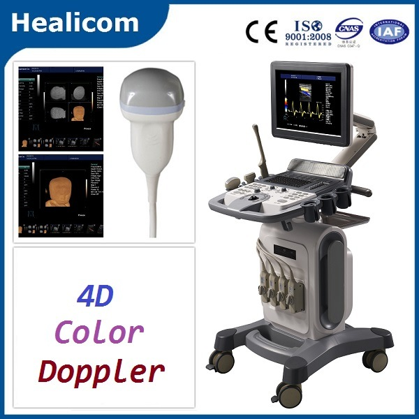 Medical Equipment Trolley Full Digital 4D Color Doppler Scanner Ultrasound