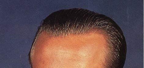 Malasian Virgin Human Hair Men′s Hair Replacement Toupees
