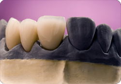 Dental Non-Precious Yellow Gold Metal Crowns