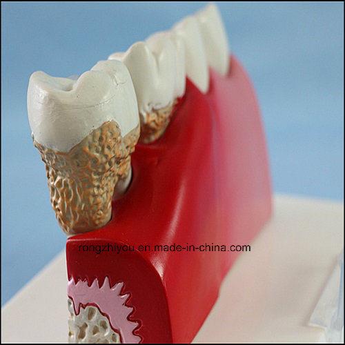 Dental Care Pathological Teeth Anatomical Model
