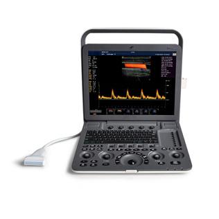 Sonoscape S8 Exp 4D Echocardiography Portable Cardiac Ultrasound Scanner