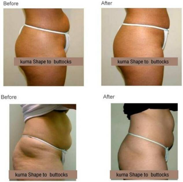Velashape V9 Slimming System New Bipolar RF Body Contouring Equipment Velashape Cavitation Slimming Body Massager Machine