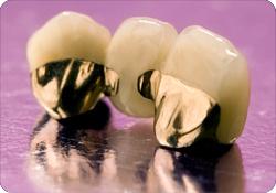 Dental Non-Precious Yellow Gold Metal Crowns