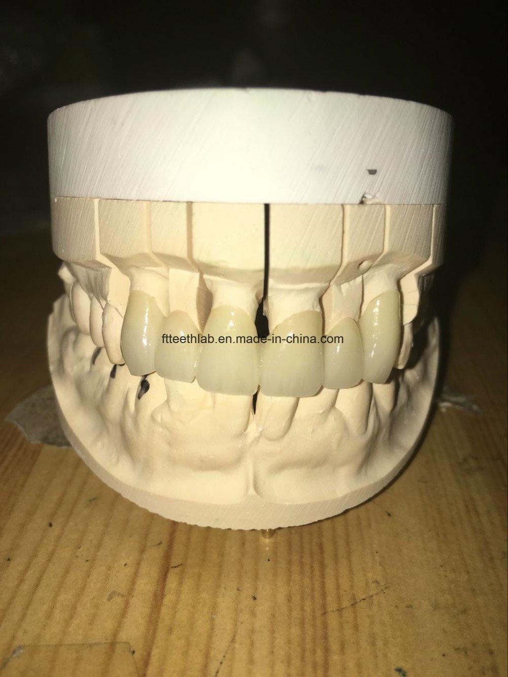 Full Porcelain Bridge Made of Zirconium Blocks and Ceramic