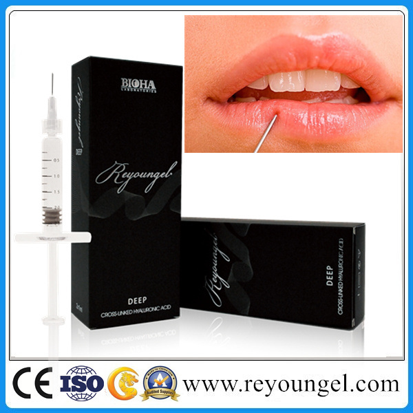 Hyaluronic Acid Deep Dermal Filler Lip Enhancement (Reyoungel 1ml. 2ml)