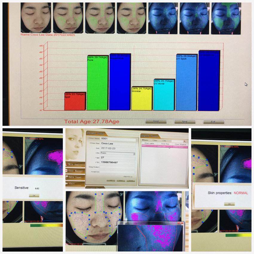 Original Factory 3D Skin Tester Visia Skin Analyzer