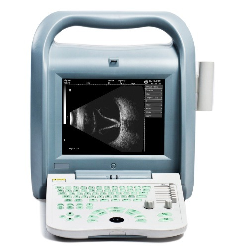 Ophthalmilc Ultrasound Ab Scan (ODU8)