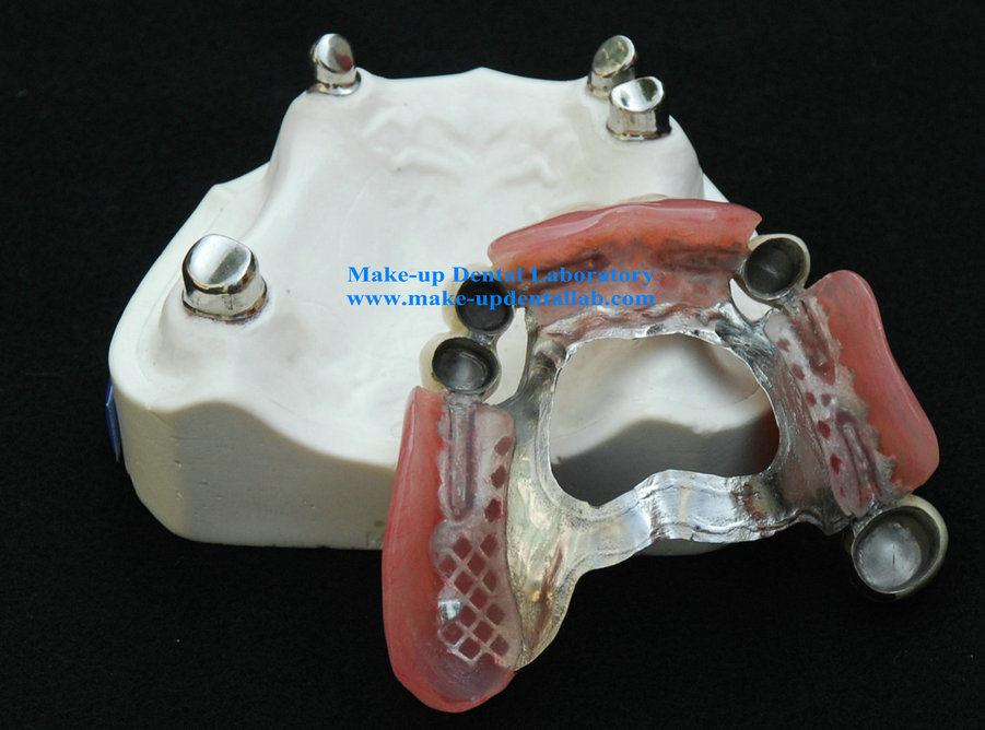 China Telescope Crown Denture Tk 1 Attachment China