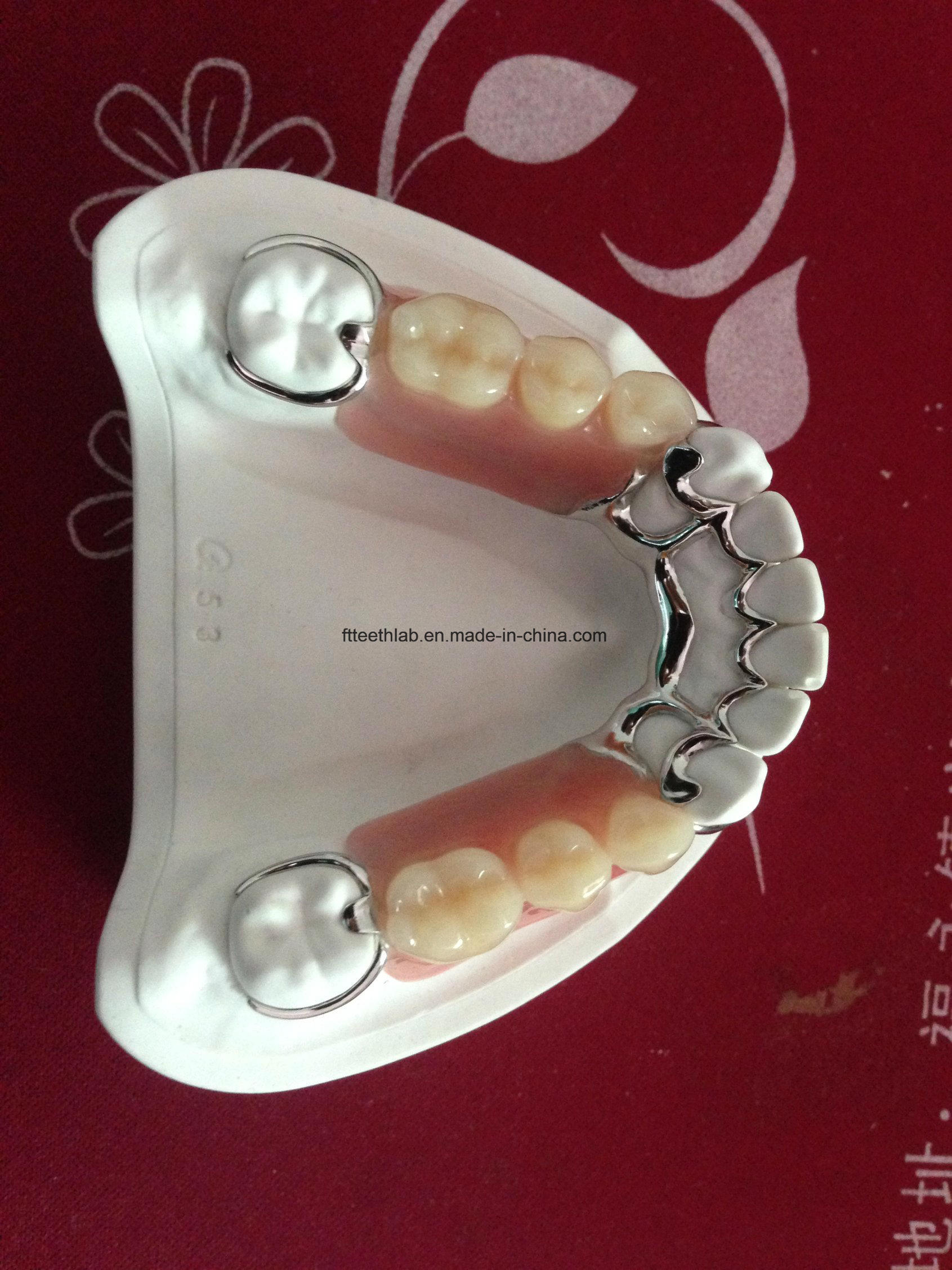 Dental Cobalt Chrome Casting Framework Denture