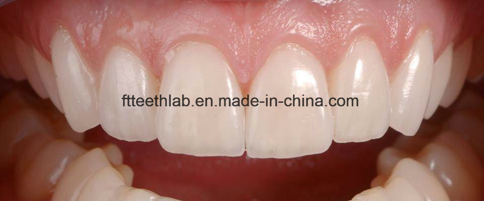No Preparation Ultrathin Veneers Made in China Dental Lab
