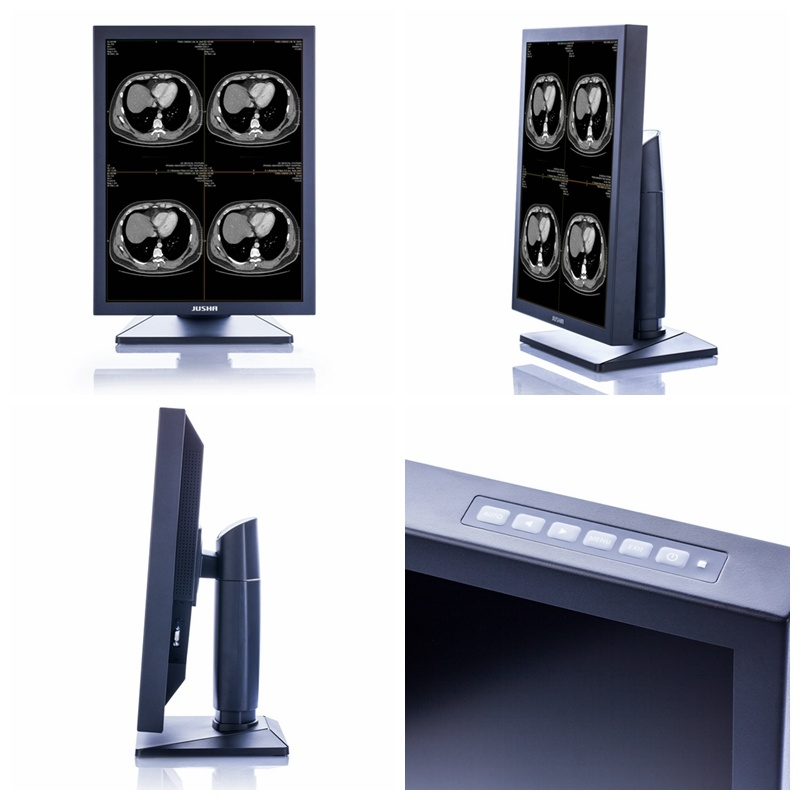Ce Approved Diagnostic LCD Monitor for X Ray Medical Equipment