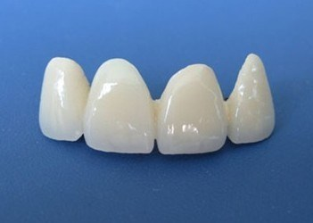 Co-Cr Porcelain Crowns and Bridges Made in China Dental Lab