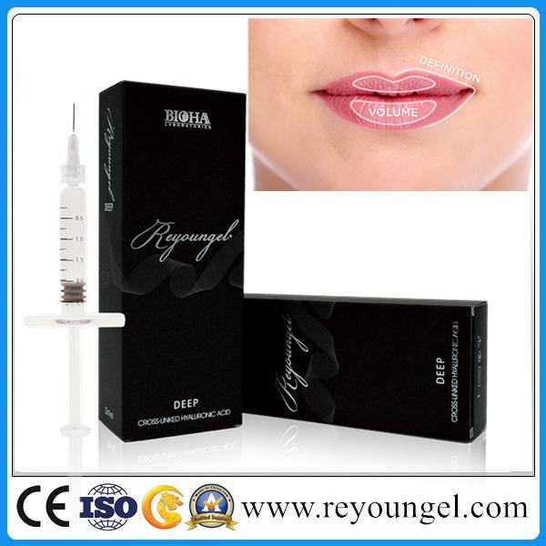 Hyaluronate Acid Dermal Filler Fullness Lips Injection Ha Dermal Filler Injection