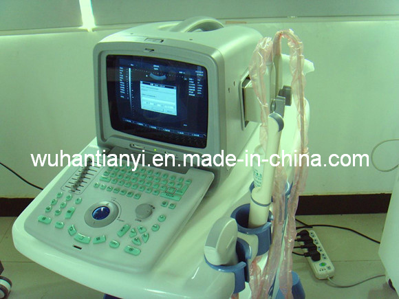 Full Digital Ultrasound Scanner for Portable Type