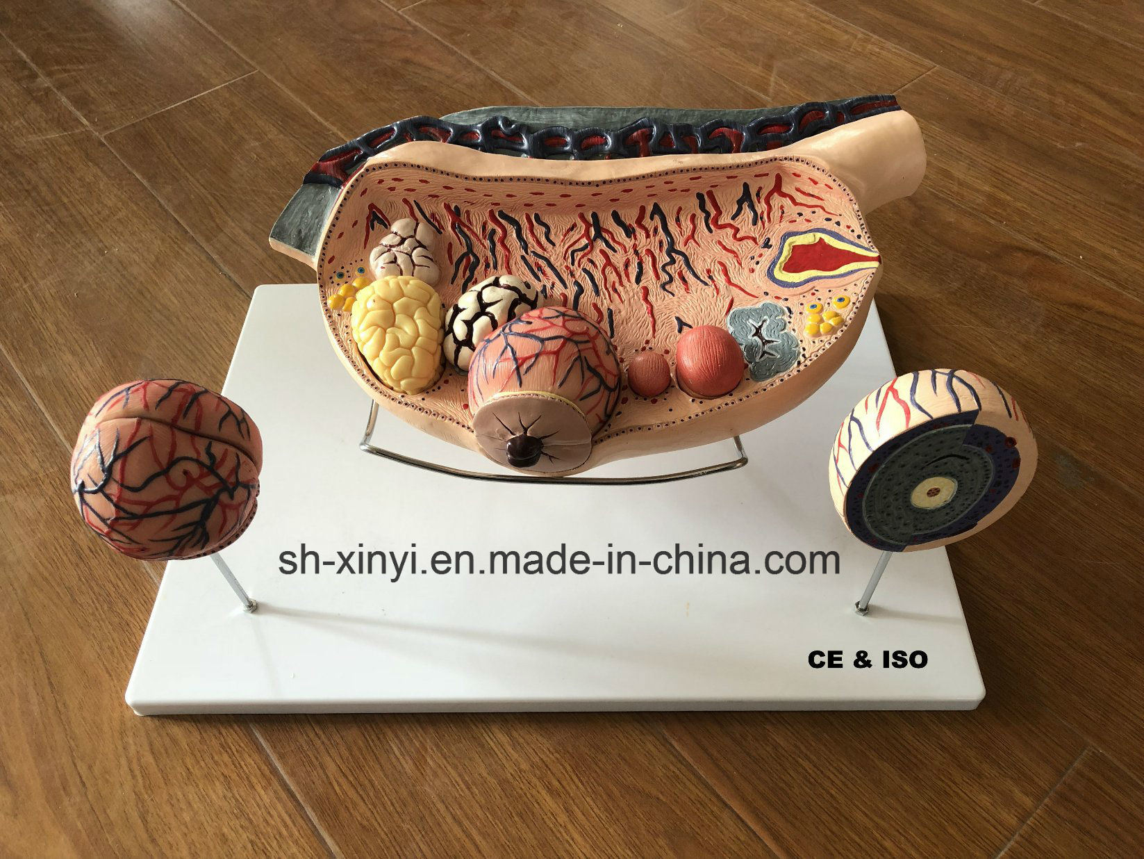 China High Enlarged Ovary, Anatomical Model, Teaching Models - China ...