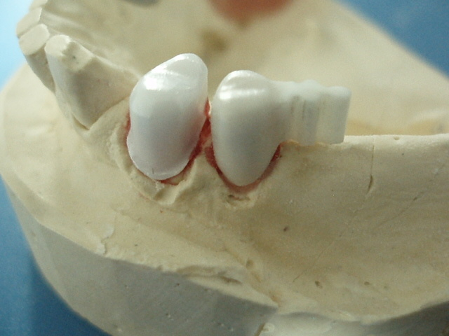 Dental All Ceramic CAD/Cam Zerconia Crowns and Bridge Implants Supplies Made in China Dental Laboratory