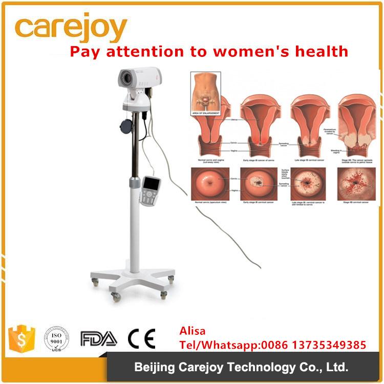 Portable Digital Electronic Colposcope for Gynecologic Examination Video - Alisa