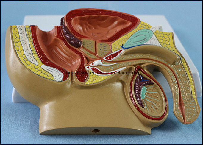 Medical Teaching Male Pelvis Anatomical Model with Common Disease