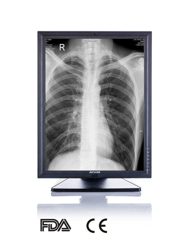 3MP 2048X1536 LED Medical Grade Monitor for Hospital Equipment CE FDA