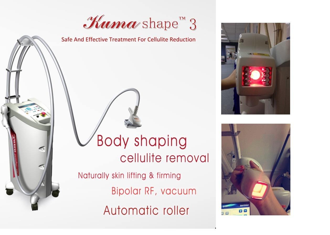 Beauty Equipment Body Slimming Machine RF Vacuum Fat Loss Machine Vela Shape Price