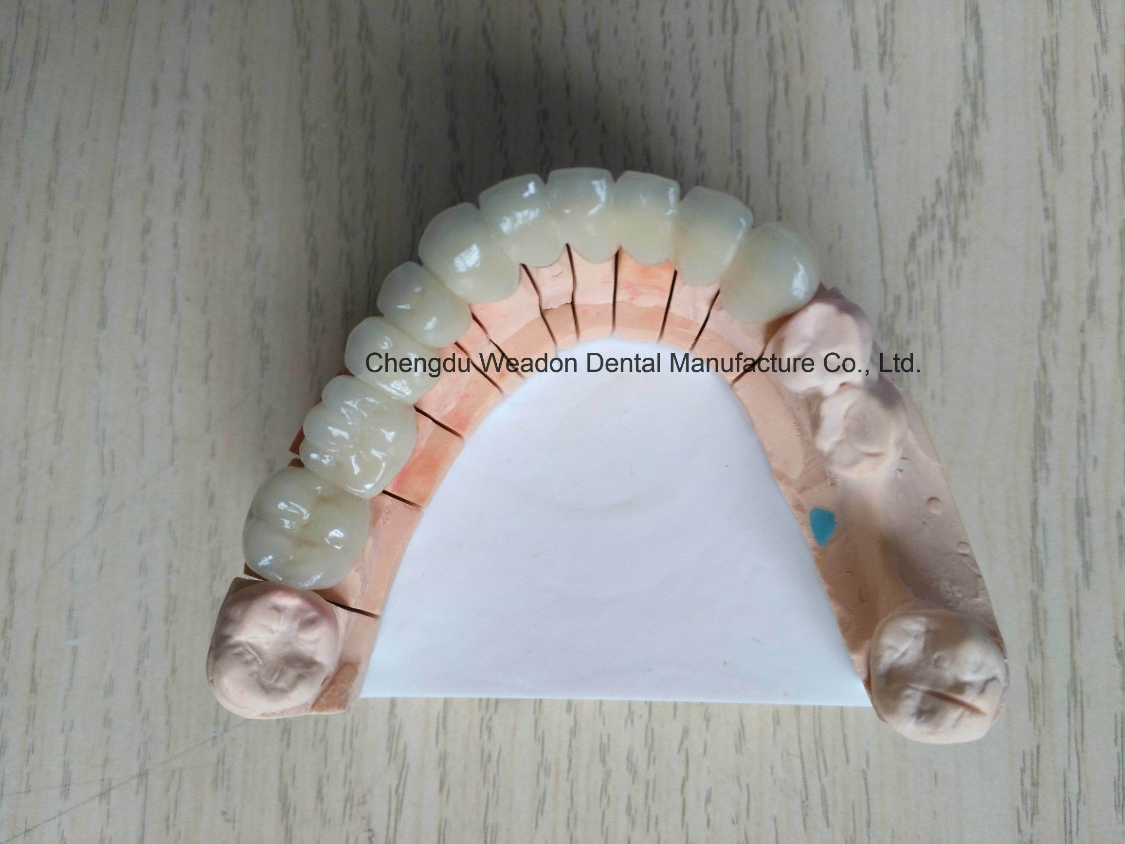 Metal Fused Ceramic Bridge Denture From Lab Service Center
