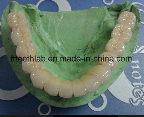 Full Metal Occlusal Dental Full Arch Metal Ceramic Bridge From China Dental Lab