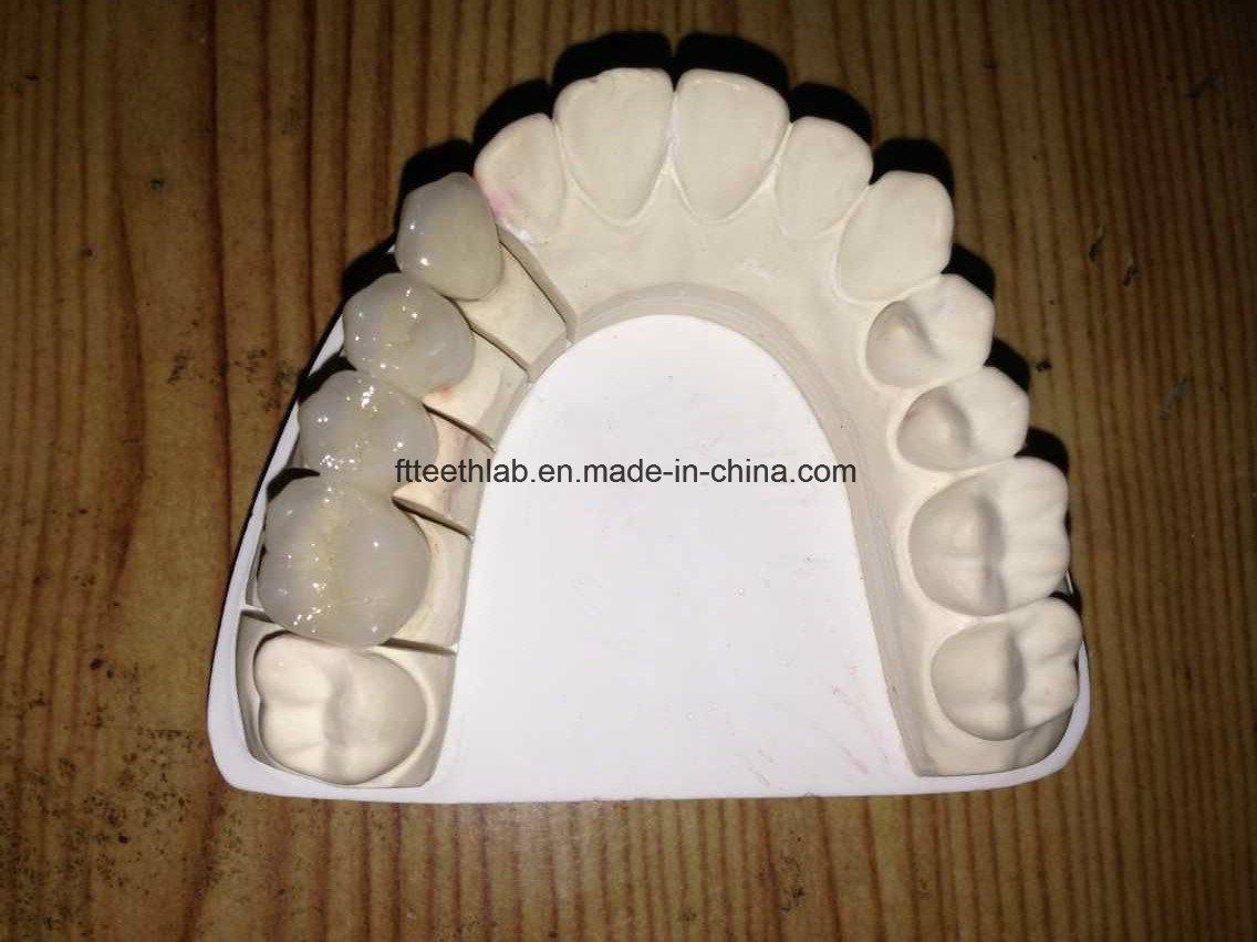 Full Metal Occlusal Dental Full Arch Metal Ceramic Bridge From China Dental Lab