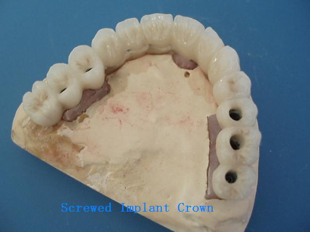 Dental CCM with All Kinds of Implants Made in China Dental Lab