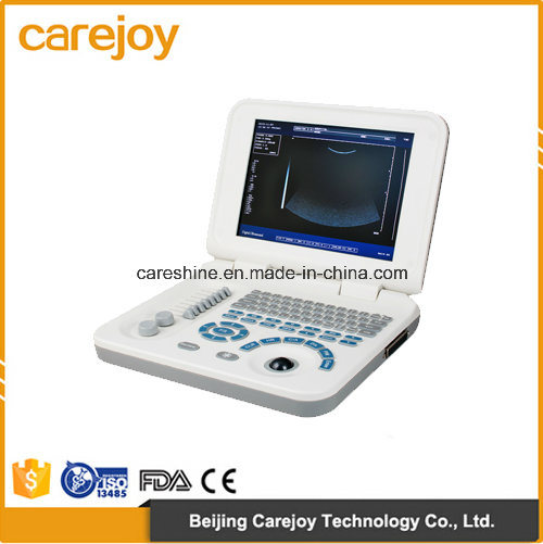 Factory Price Laptop Ultrasound Scanner with Convex Probe (RUS-9000F2) -Fanny