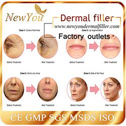 New You Injectable Hyaluronic Acid Dermal Filler