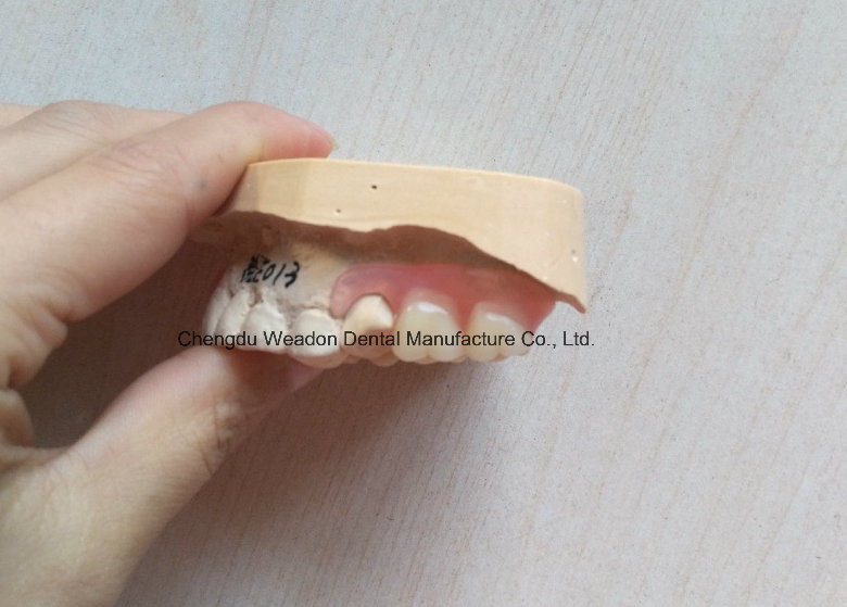 Valplast Denture From Chinese Dental Center
