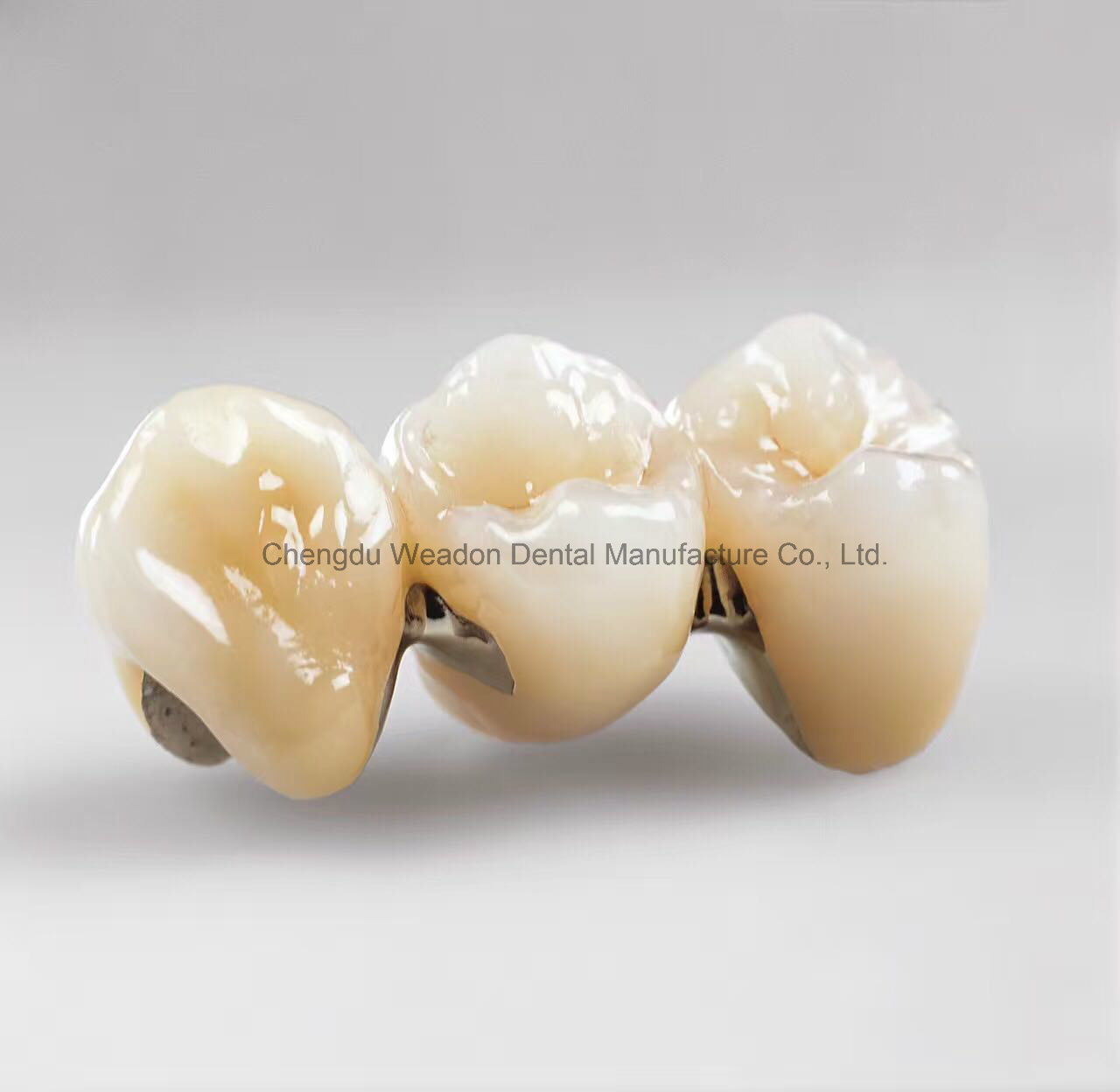 Pfm Crown Denture for Clinic From Chinese Dental Lab