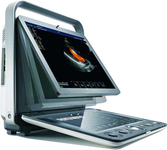 Excellent Superb Color Doppler 4D Portable Ultrasound Machine (MC-DU-S9)