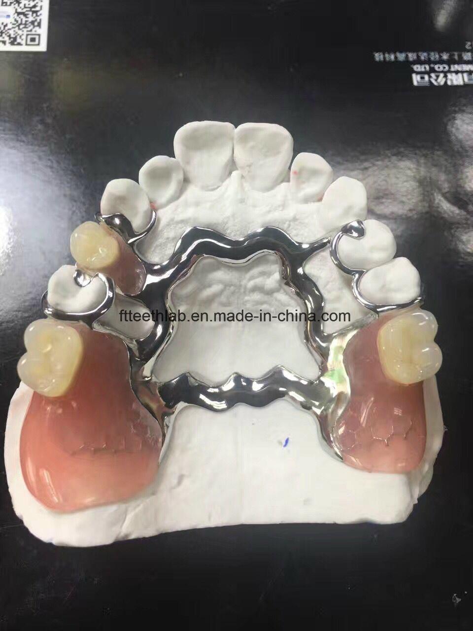 Vitallium Casting Framework Denture