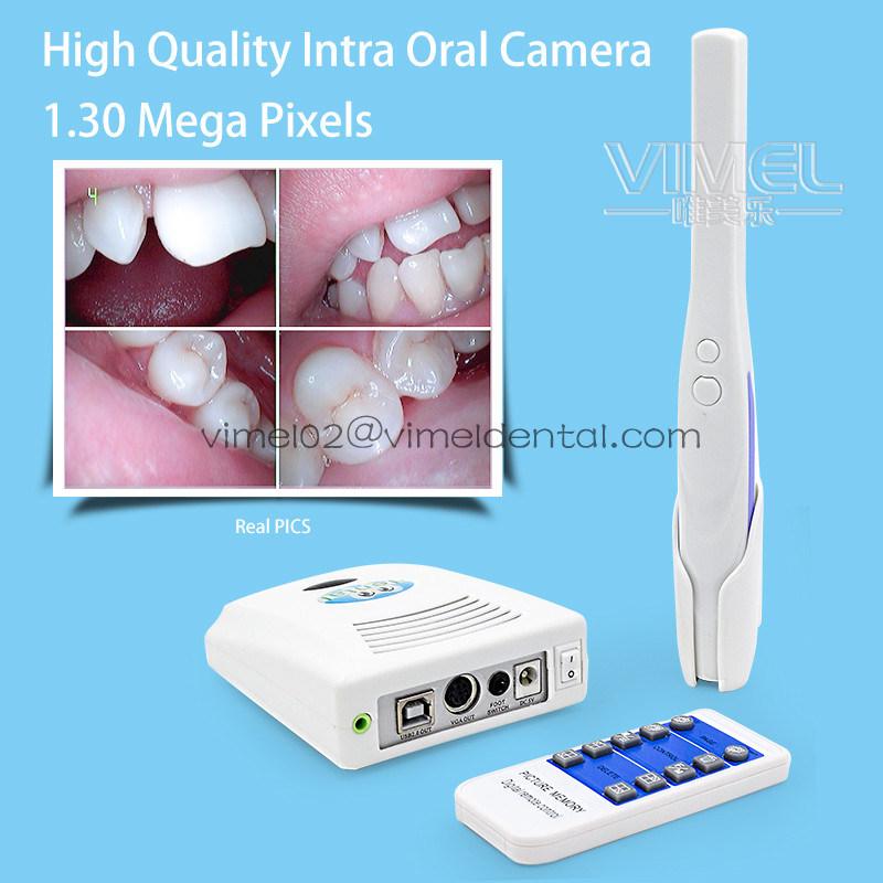 1.30 Mega Pixels Dental Endoscope Intra Oral Camera