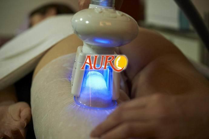 Cryolipolysis Vacuum Roller Fat Sucking Beauty Slimming Machine