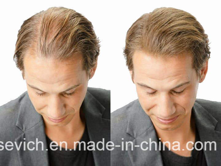 10 Colors Wholesale Hair Thickening Keratin Hair Building Fibers Powder