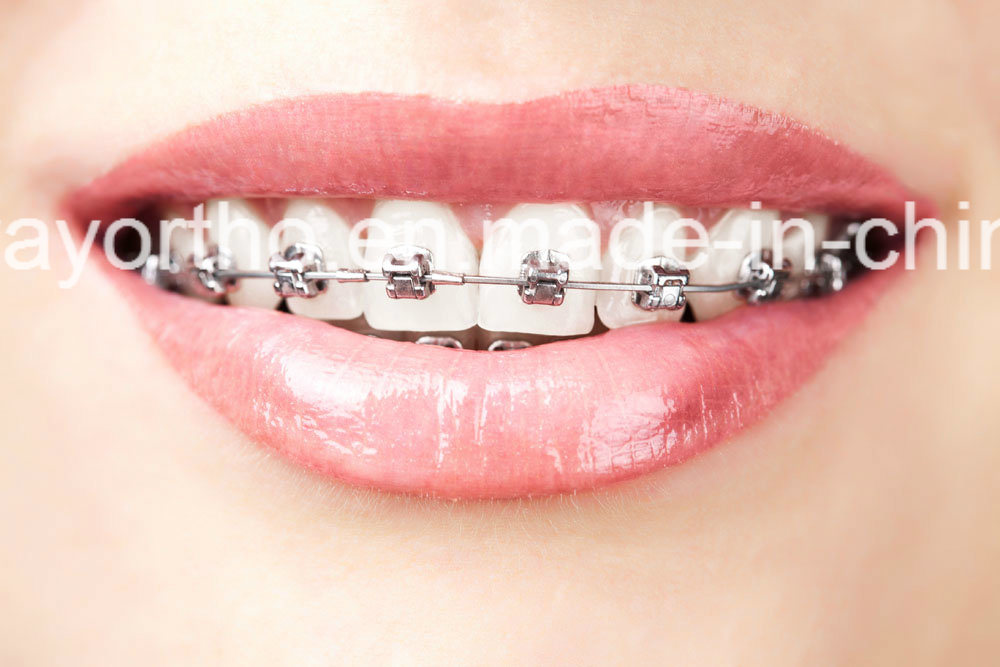 Good Sale Orthodontic Self-Ligating Brackets, Dental Braces with Hook 12345#